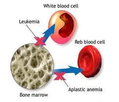 Obat Tradisional Anemia Aplastik